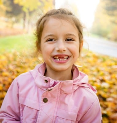 Little girl smiling with missing teeth after baby tooth extraction